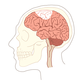 the Research of what motivate a stroke