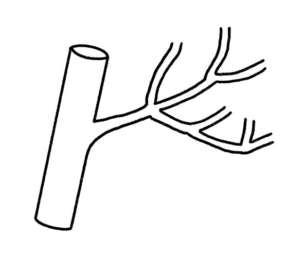 Research: angiogenesis diagram