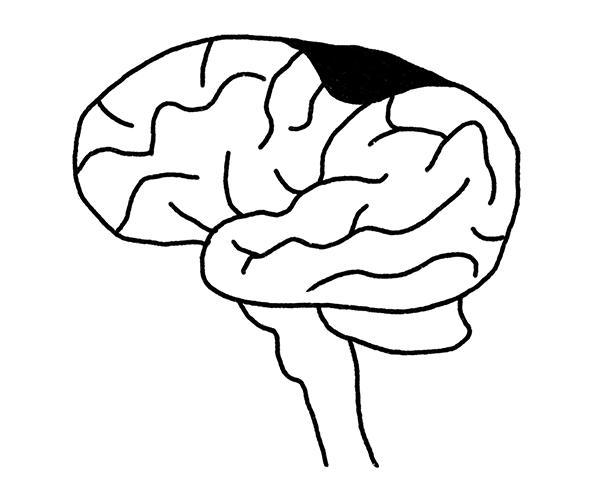 Research stroke diagram
